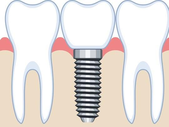 天然歯のような機能回復ができる「インプラント」とはどんなもの?